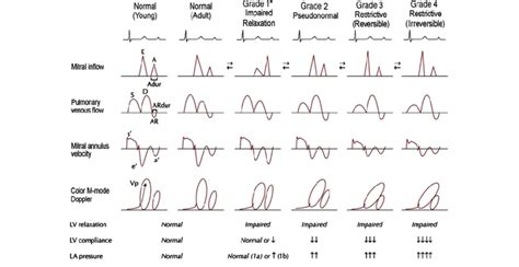 impaired relaxation pattern of lv diastolic filling treatment grades of diastolic function the doppler echocardiography