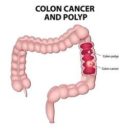 Colon Cancer Without Blood In Stool by Cologuard A New Test For Reducing The Risk Of Colon