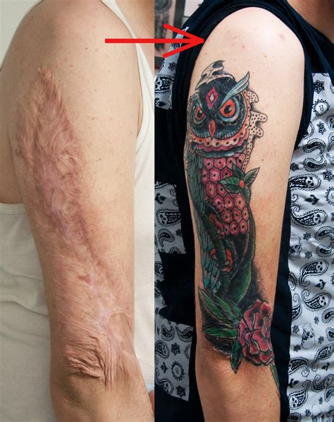 tattoos over burn scars burn scar cover healed by