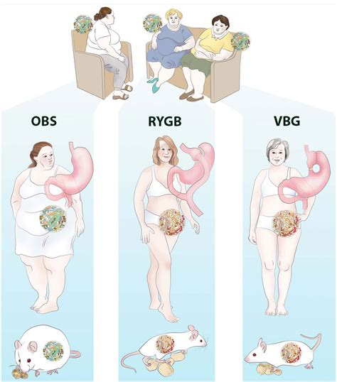 3 weight loss surgeries weight loss surgery benefits for gut microbiome last at