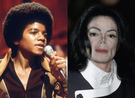 how did michael jackson change his skin color those who their skin is white the new black