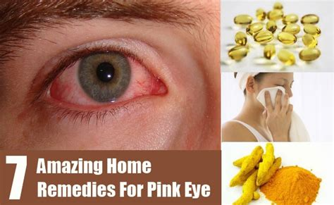 pink eye remedies at home images