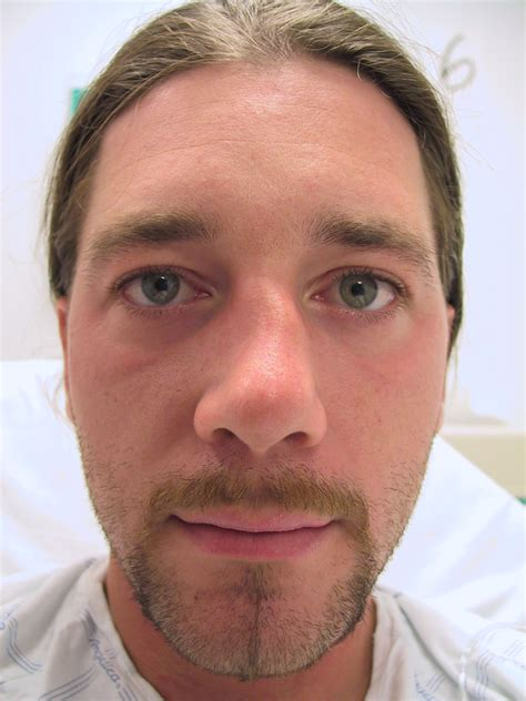 cracked nose treatment broken nose treatment by beverly specialist