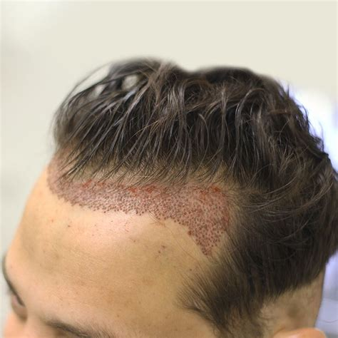 fue haircuts how after fue haircut hair transplant before and after