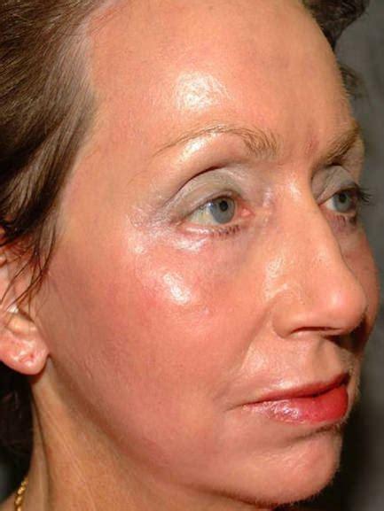 ablative laser resurfacing skin resurfacing laser lumenis fractional ablative resurfacing by the dermatology and