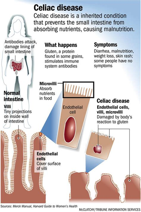 coeliac disease pictures posters news and on