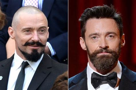 main actor in wolverine what has hugh jackman done to his beautiful face actor