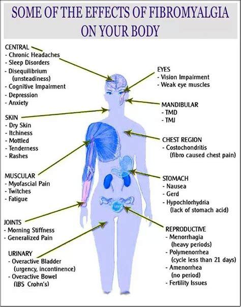 pressure points fibromyalgia diagram fibromyalgia diagram pictures to pin on