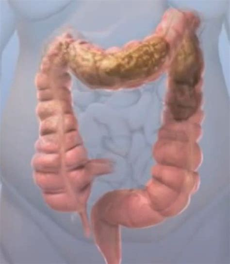 Much Stool In Colon by Obstipation Symptoms Causes Treatment Hubpages