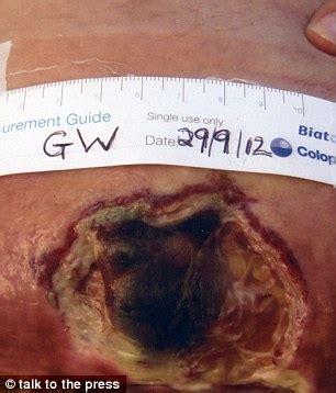 2nd delivery after c section setelah operasi caesar perut wanita ini bolong 25 cm
