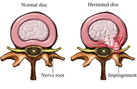 herniated disc diagram herniated disc and pinched nerve
