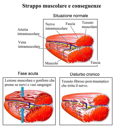 contrattura interno coscia dolore alla coscia sinistra o destra anteriore o