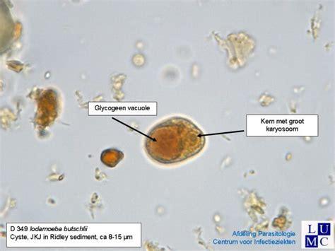 Stool Cyst by Iodamoeba B 252 Tschlii Laboratories