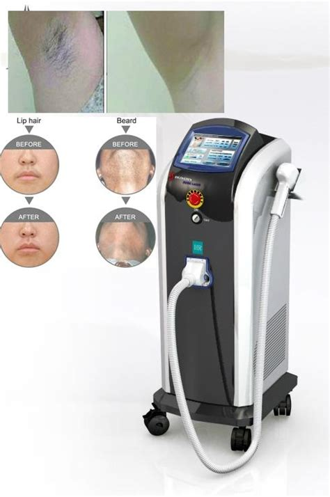 diode laser hair removal chicago lightsheer duet diode laser sydney 28 images professional permanent hair removal definitive