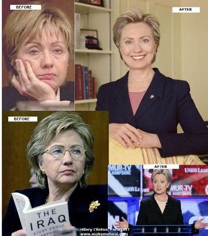 has hillary clinton had cosmetic work done chelsea hillary clinton caign with plastic surgery