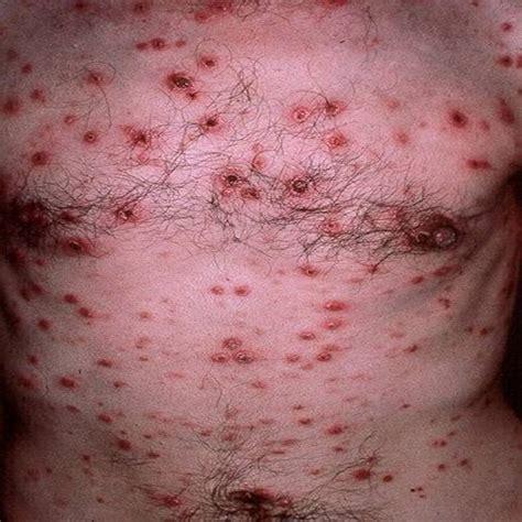 gonorrea imagenes enfermedades de transmisi 211 n sexual e t s la gonorrea