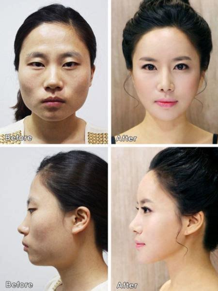 Wajah Naturelle chirurgie esth 233 tique japon asie strategical