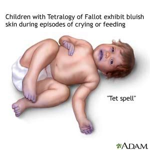 bluish coloration of the skin tetralogy of fallot in children what you need to