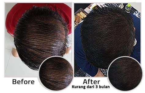 Jual Dermagift Hair Serum dermagift serum official jual dermagift hair serum