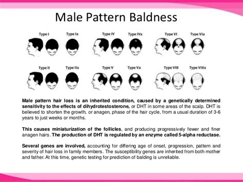 reasons for male pattern hair loss causes of hair loss male female pattern baldness