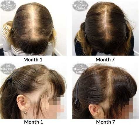 cicatricial pattern hair loss belgravia hair loss blog