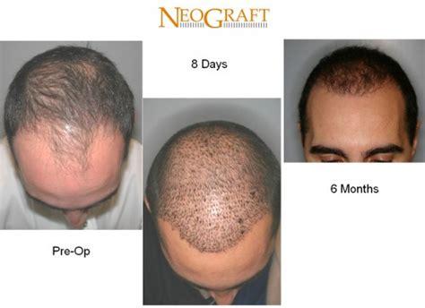 hair transplant calculation hair transplantation replacement restoration costs bosley