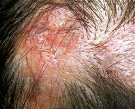 Scalp Itching And Sores | raised sores on scalp pictures photos