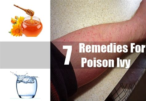 7 remedies for poison treatments cure for