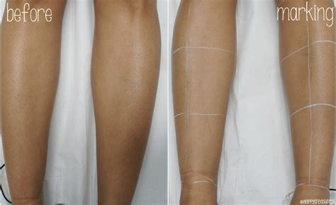 hair removal for legs laser hair removal on legs demo faqs