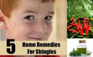 home remedies for shingles 5 best home remedies for shingles treatments