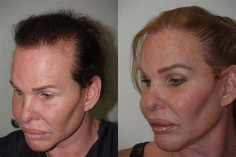 female to male transgender surgery before and after gender reassignment surgery before and after pics
