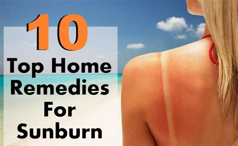 top 10 home remedies for sunburn diy health remedy