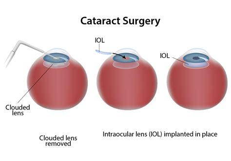 cataract surgery cataract surgery skagit valley mt vernon wa
