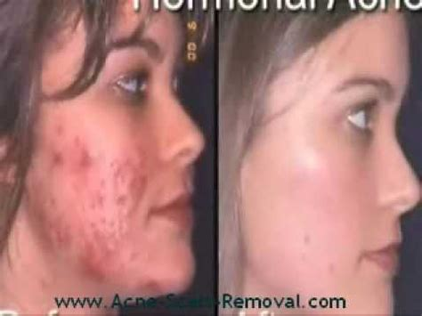 best acne scar treatment treatments for acne scars marks best acne scar treatment