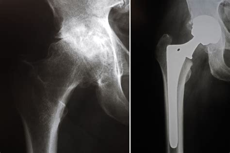 hip replacement hip replacement cemented or uncemented is better