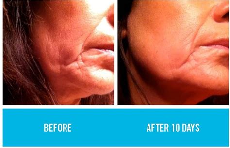 jowls and sagging around mouth treatment jowls and sagging around mouth pin by fern brazda