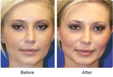 light chemical peel before and after dot laser skin therapy laser skin treatments in las vegas