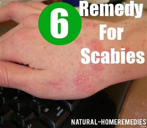 4 ways to treat scabies naturally home remedies for