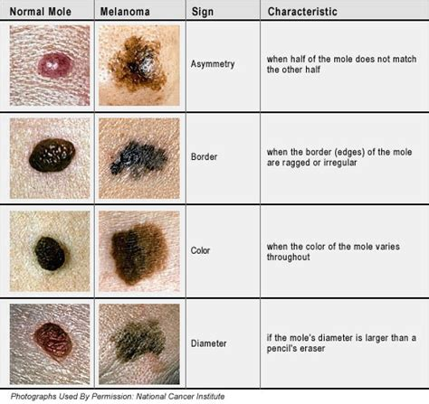 how to tell if a mole is cancerous or not