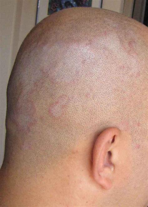 dermatite seborroica testa file seborrhoeic dermatitis exle jpg wikimedia commons