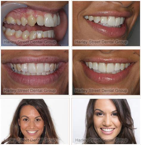creating  brand  whiter smile  invisalign