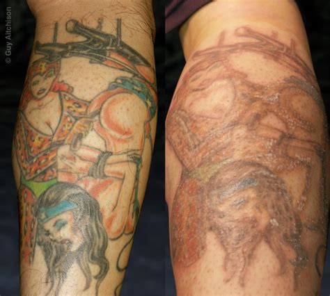 tattoo education education tattoos aitchison hiro before