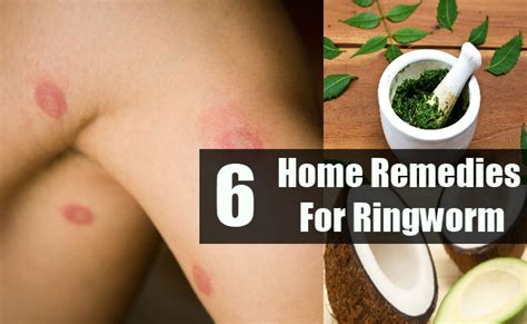 6 ringworm home remedies treatments and cure