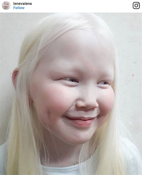 what color are albinos an eye opening look in to what albinos of different races