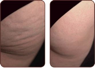 Home Cellulite Laser | cellulite before and after cellulite laser treatment