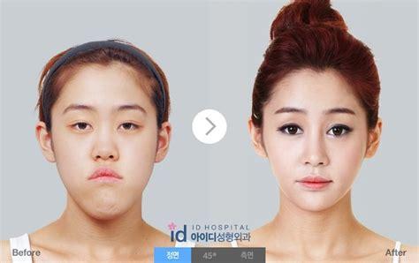 Septa Makeup Class 복코성형잘하는곳 구별방법