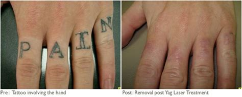 scarring after laser tattoo removal removal before and after jpg