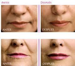 consecuencias exceso botox lo mejor consecuencias de las cirugias faciales cirug 237 a y