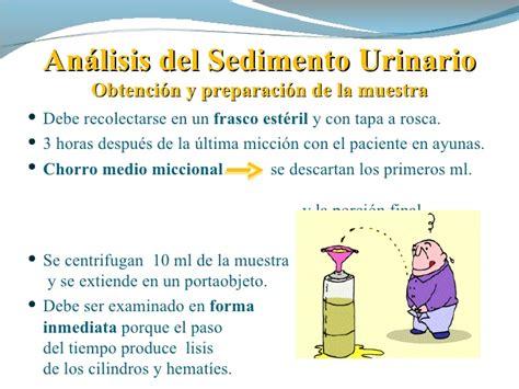 analisi sedimento urinario sedimento urinario