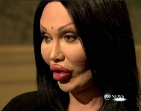 pete burns dead or alive 21 best images about plastic surgery gone wrong on